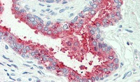 NKCC1 Antibody (PA5-33024) in Immunohistochemistry (Paraffin)