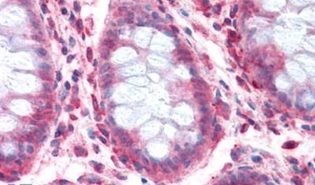 SLC1A4 Antibody (PA5-33025) in Immunohistochemistry (Paraffin)