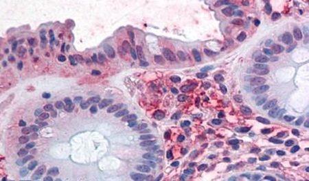 ASCT2 Antibody (PA5-33027) in Immunohistochemistry (Paraffin)