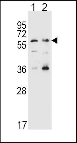 SLC22A4 Antibody (PA5-25877)