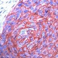 GLUT1 Antibody (MA1-37783) in Immunohistochemistry