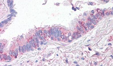 CTR1 Antibody (PA5-33031)