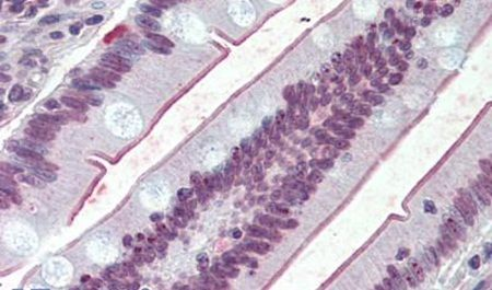 SLC5A1 Antibody (PA5-33038) in Immunohistochemistry (Paraffin)