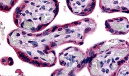 SLC7A5 Antibody (PA5-34215) in Immunohistochemistry (Paraffin)