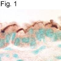 EBP50 Antibody (PA1-090) in Immunohistochemistry