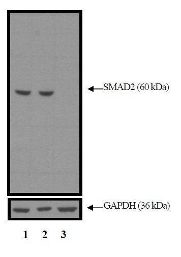 SMAD2 Antibody (MA5-15112) in Western Blot