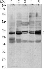 SMAD3 Antibody (MA5-15663) in Western Blot