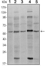 SMAD4 Antibody (MA5-15682) in Western Blot