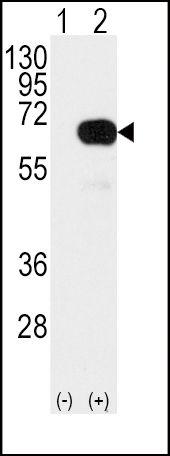 SMAD4 Antibody (PA5-14845) in Western Blot
