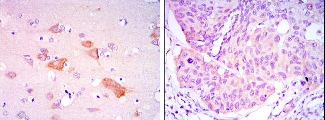 SMAD5 Antibody (MA5-15793) in Immunohistochemistry