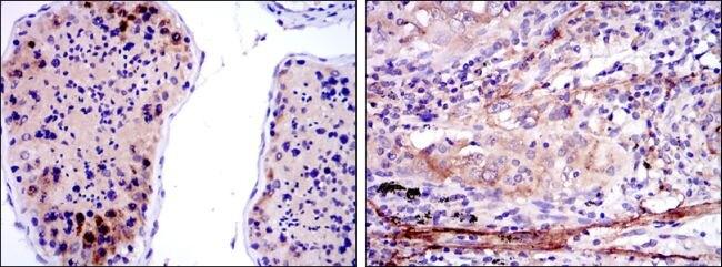 SMN Antibody (MA5-15857) in Immunohistochemistry