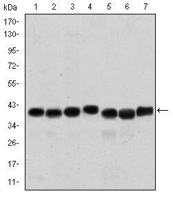 SMN Antibody (MA5-15857) in Western Blot