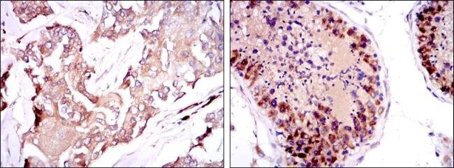 SMN Antibody (MA5-15858) in Immunohistochemistry