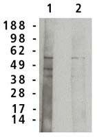 ASM Antibody (PA1-12756)
