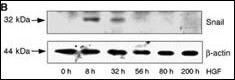 SNAIL Antibody (PA5-11923) in Western Blot