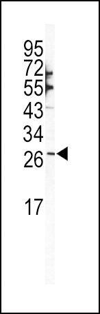 SNAIL Antibody (PA5-11924) in Western Blot