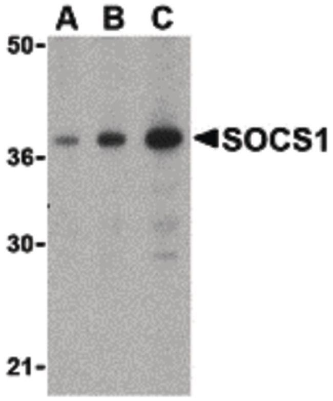 SOCS1 Antibody (PA5-20228)