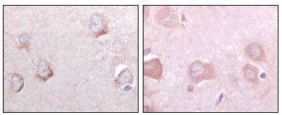 SORL1 Antibody (MA5-15355) in Immunohistochemistry