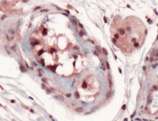 SOX9 Antibody (PA5-32597) in Immunohistochemistry