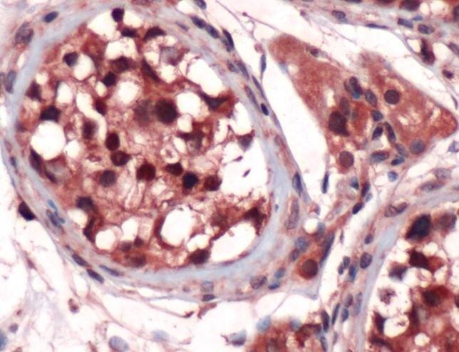 SOX9 Antibody (PA5-32598) in Immunohistochemistry