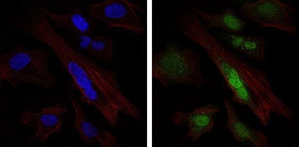 SOX9 Antibody (MA5-17177)