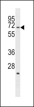 STK39 Antibody (PA5-15179) in Western Blot