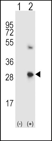 SPARC Antibody (PA5-13703) in Western Blot