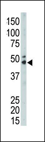SPHK1 Antibody (PA5-14068) in Western Blot