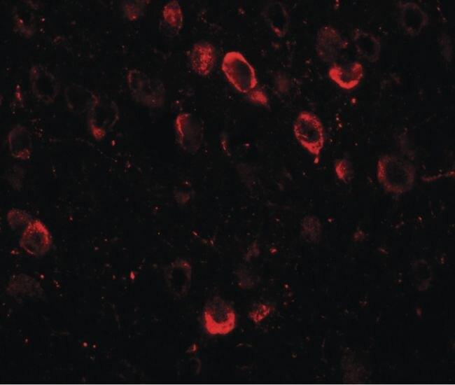 SPRYD2 Antibody (PA5-21170)