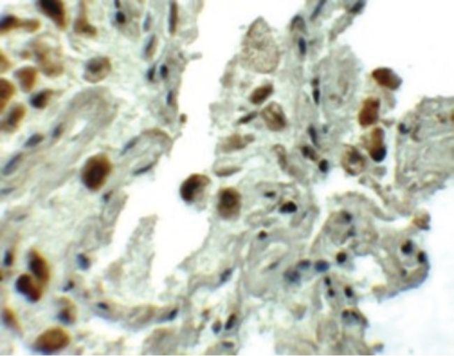 SPTLC1 Antibody (PA5-21141)
