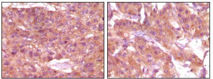 SRA1 Antibody (MA5-15287)