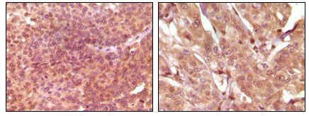 SRA1 Antibody (MA5-15288) in Immunohistochemistry