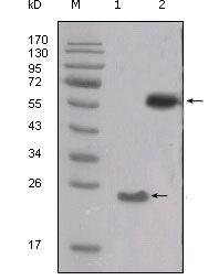 SRC Antibody (MA5-15412) in Western Blot