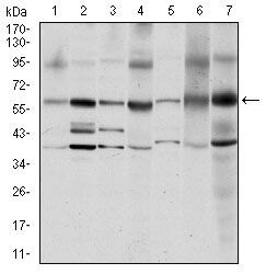 SRC Antibody (MA5-15924) in Western Blot