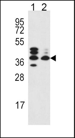 SRD5A3 Antibody (PA5-25200) in Western Blot