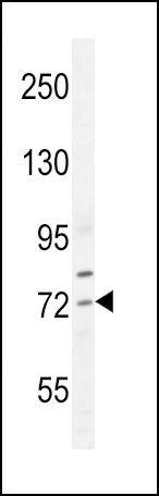 SREBP2 Antibody (PA5-24167) in Western Blot