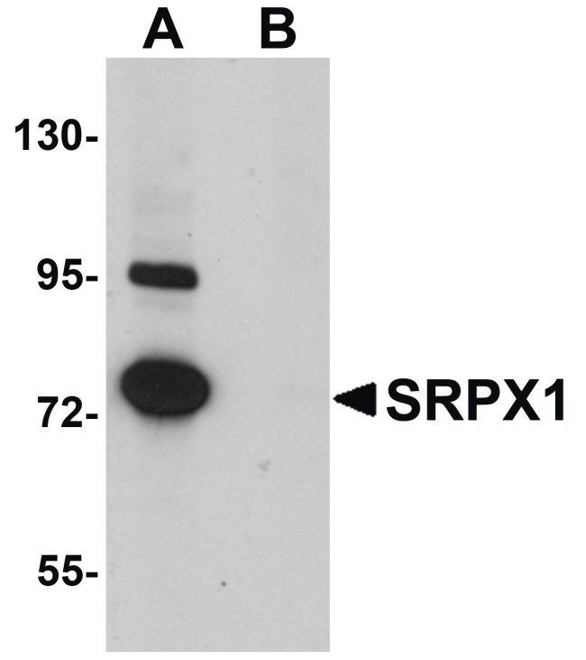 SRPX Antibody (PA5-20843) in Western Blot