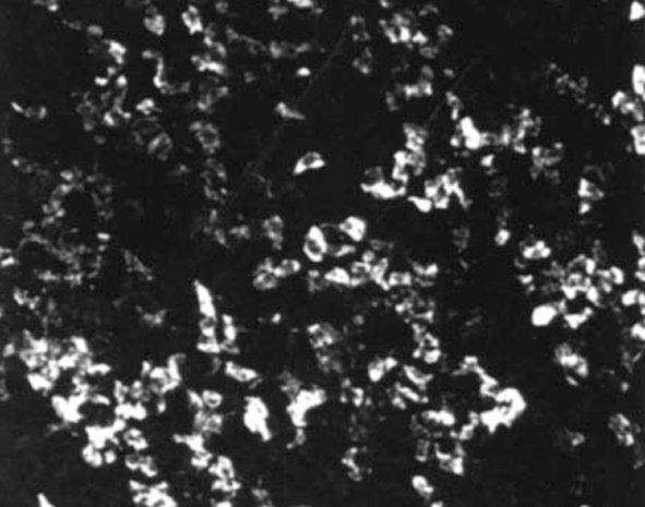 SSTR5 Antibody (PA3-209)