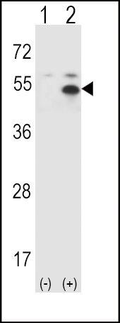 STAM Antibody (PA5-12087) in Western Blot