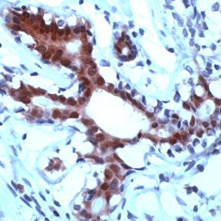 STAT5 alpha Antibody (PA5-32602)