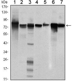 STAT5 beta Antibody (MA5-15665) in Western Blot
