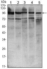 STAT6 Antibody (MA5-15659) in Western Blot
