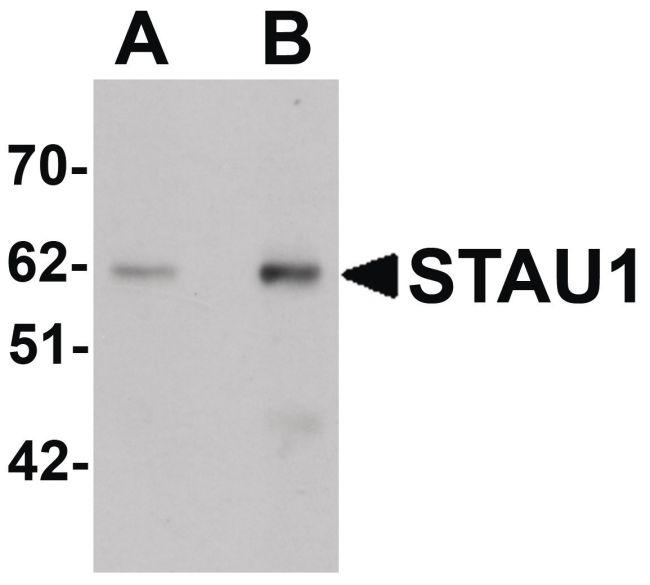 Staufen Antibody (PA5-21038) in Western Blot