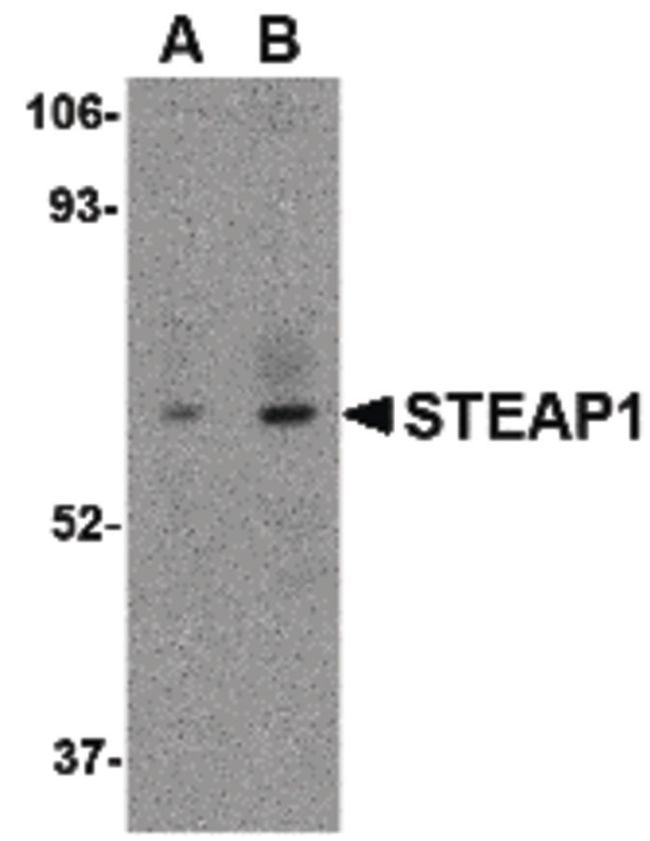 STEAP1 Antibody (PA5-20403) in Western Blot