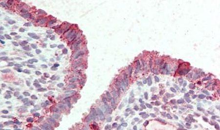 STEAP2 Antibody (PA5-33060) in Immunohistochemistry (Paraffin)