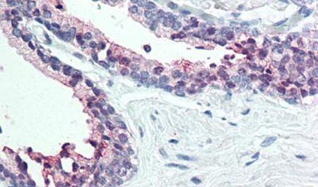 STEAP2 Antibody (PA5-33062) in Immunohistochemistry (Paraffin)