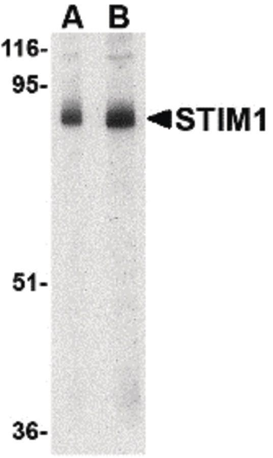 STIM1 Antibody (PA5-20371) in Western Blot