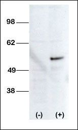STK38L Antibody (PA5-14803) in Western Blot