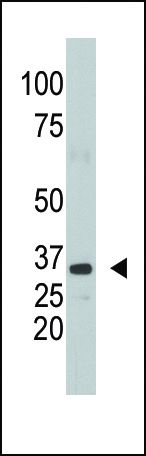 SULT1A1 Antibody (PA5-12247) in Western Blot
