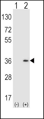 SULT1A1 Antibody (PA5-12247)